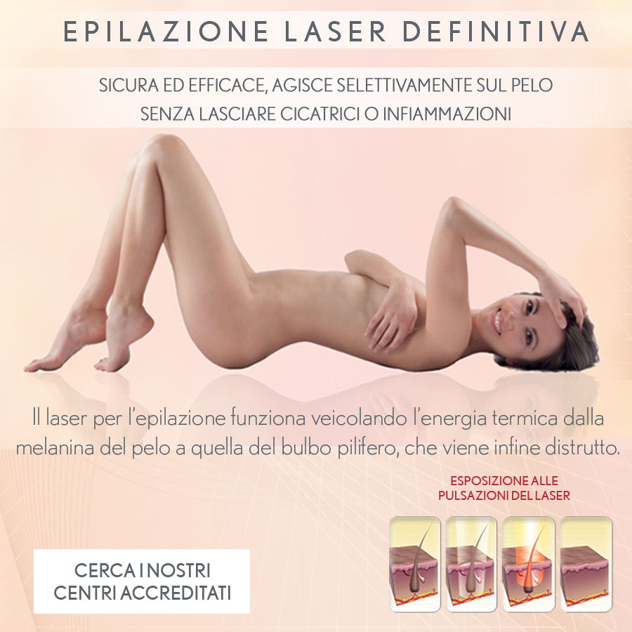 epilazione laser definitiva